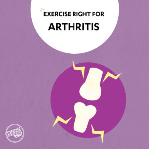 exercise right for condition_arthritis
