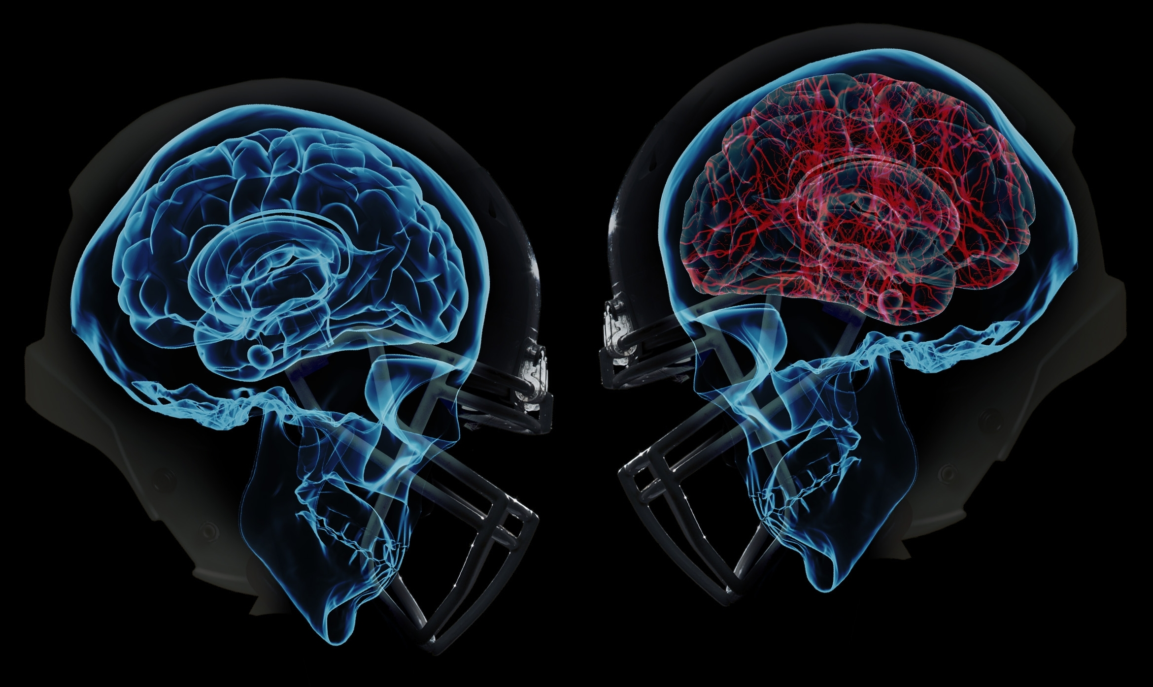 Concussions Are Brain Injuries Sit Your >> A Heads Up Concussion In Sport Exercise Right